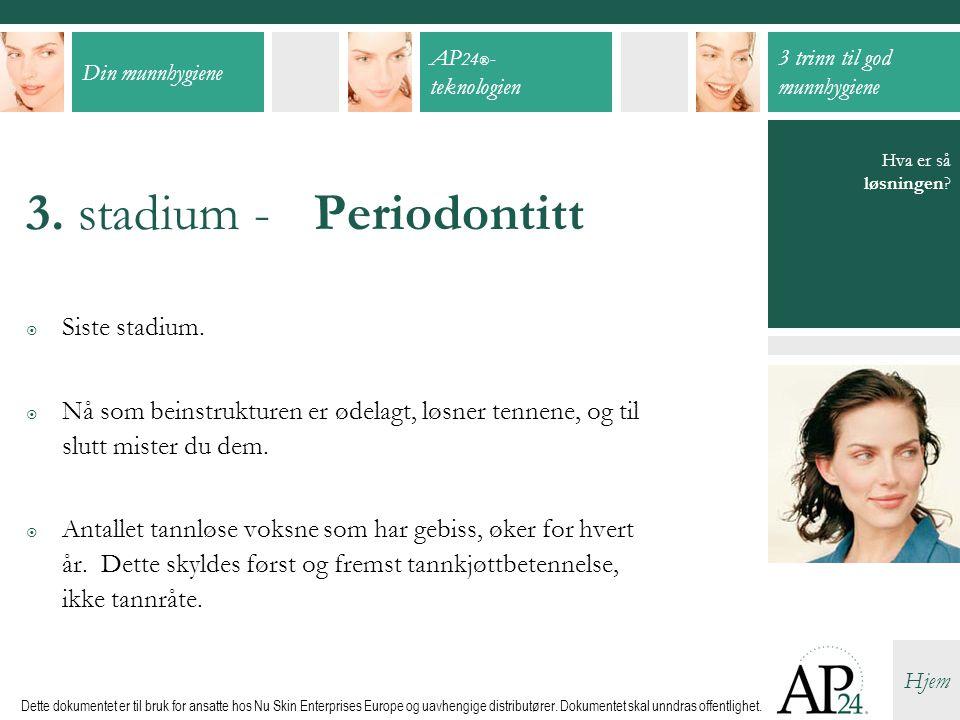 3. stadium - Periodontitt