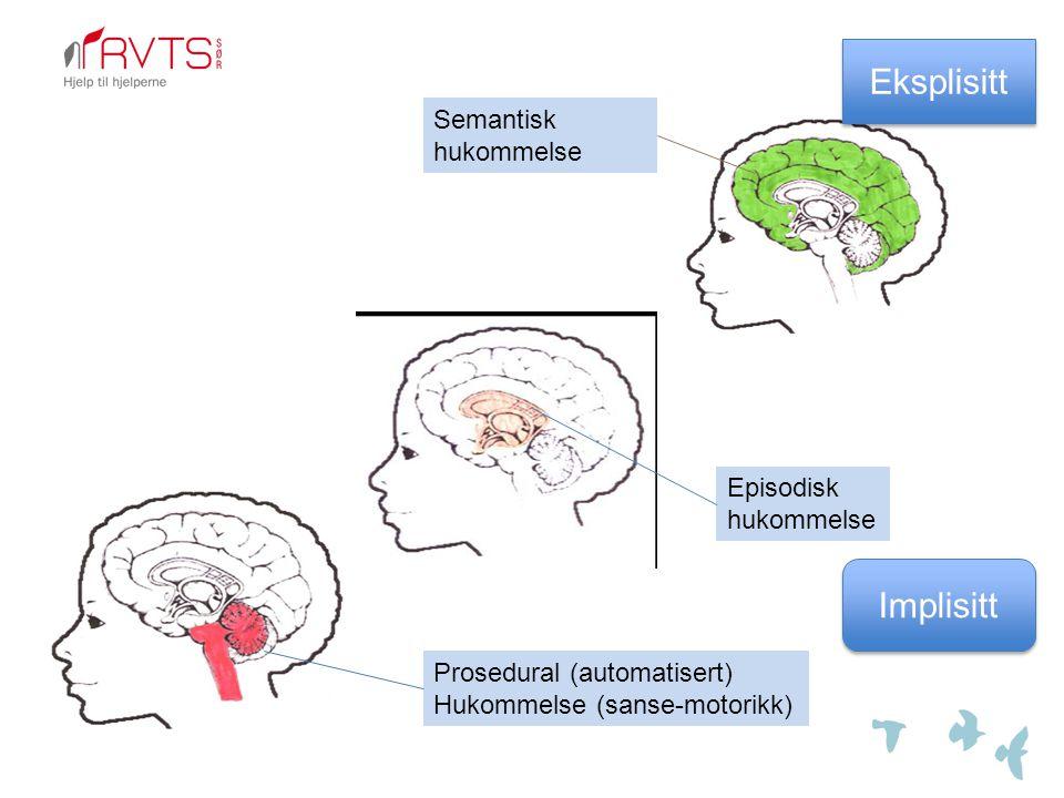 Eksplisitt Implisitt Semantisk hukommelse Episodisk hukommelse