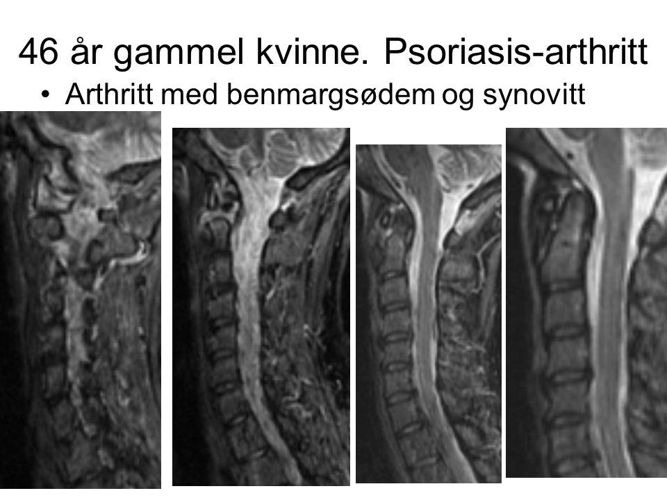 46 år gammel kvinne. Psoriasis-arthritt