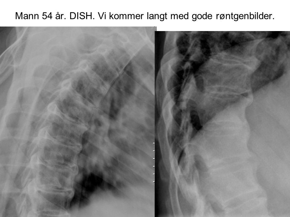 Mann 54 år. DISH. Vi kommer langt med gode røntgenbilder.