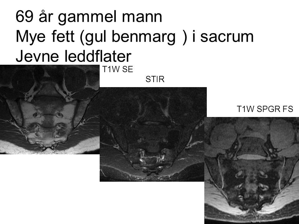 69 år gammel mann Mye fett (gul benmarg ) i sacrum Jevne leddflater