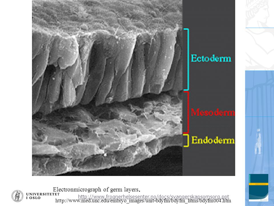 Electronmicrograph of germ layers.