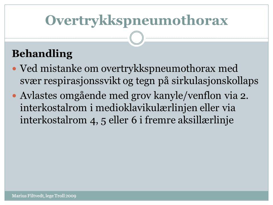 Overtrykkspneumothorax