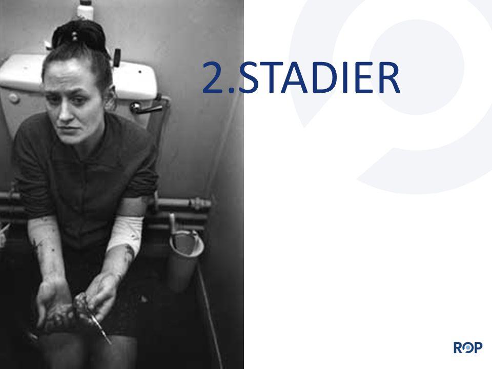 2.STADIER
