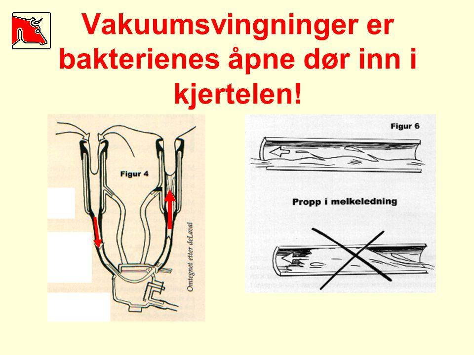 Vakuumsvingninger er bakterienes åpne dør inn i kjertelen!
