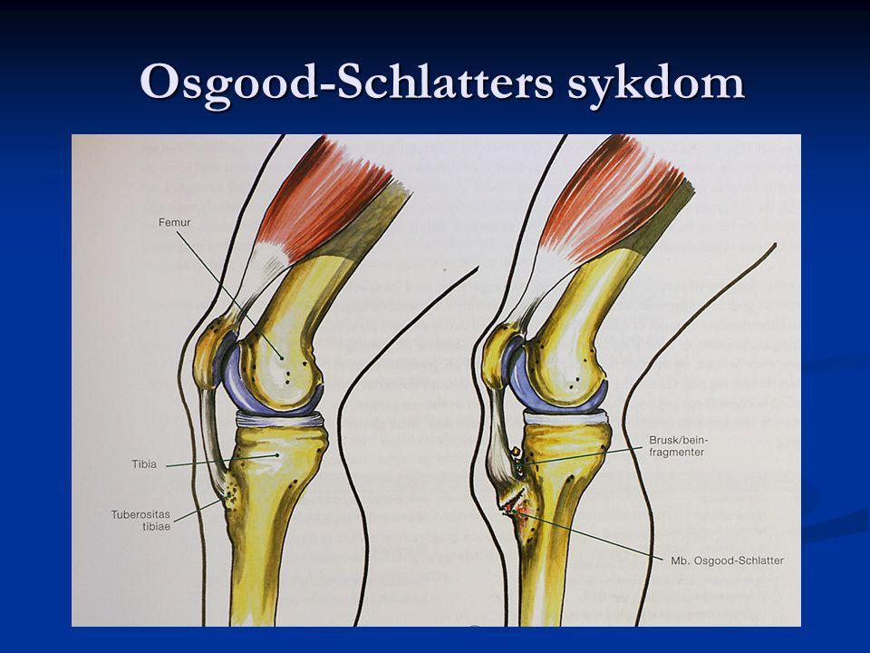 Osgood-Schlatters sykdom