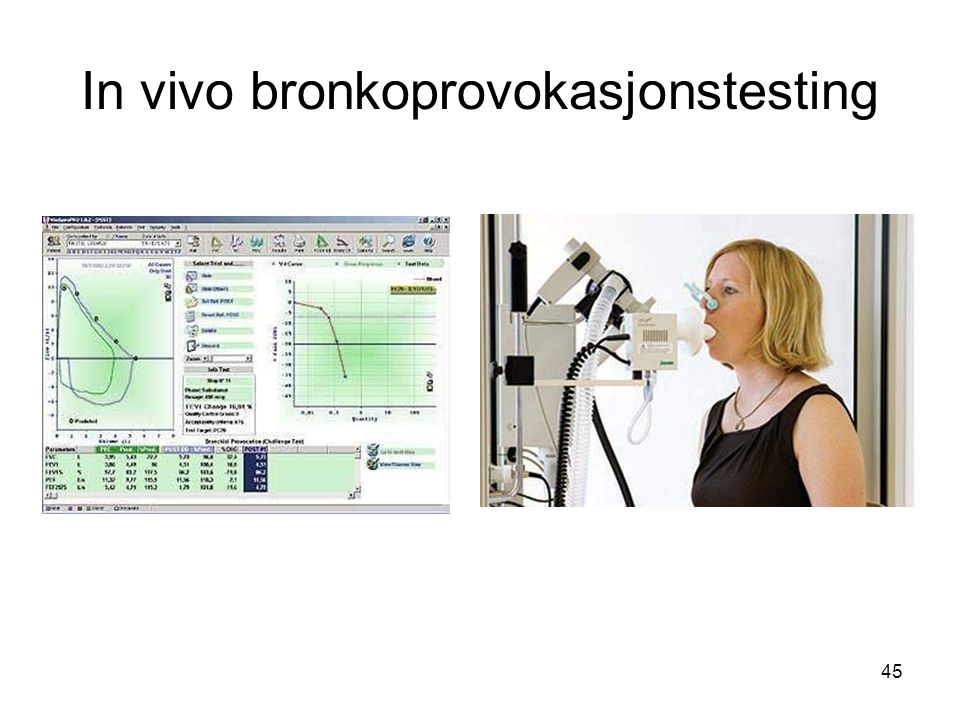 In vivo bronkoprovokasjonstesting