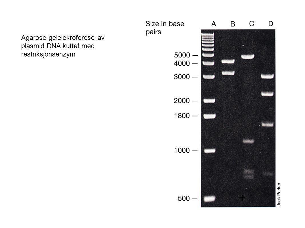 Agarose gelelekroforese av plasmid DNA kuttet med restriksjonsenzym