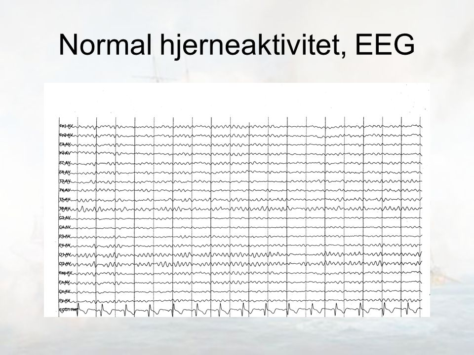 Normal hjerneaktivitet, EEG