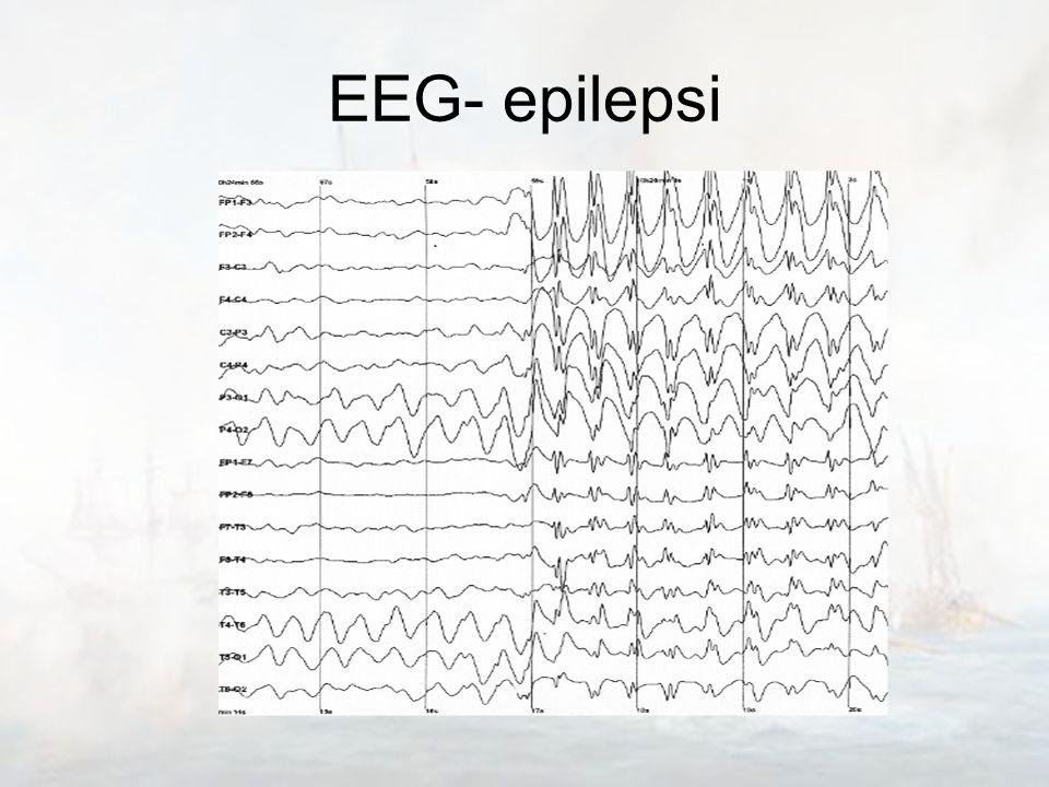 EEG- epilepsi