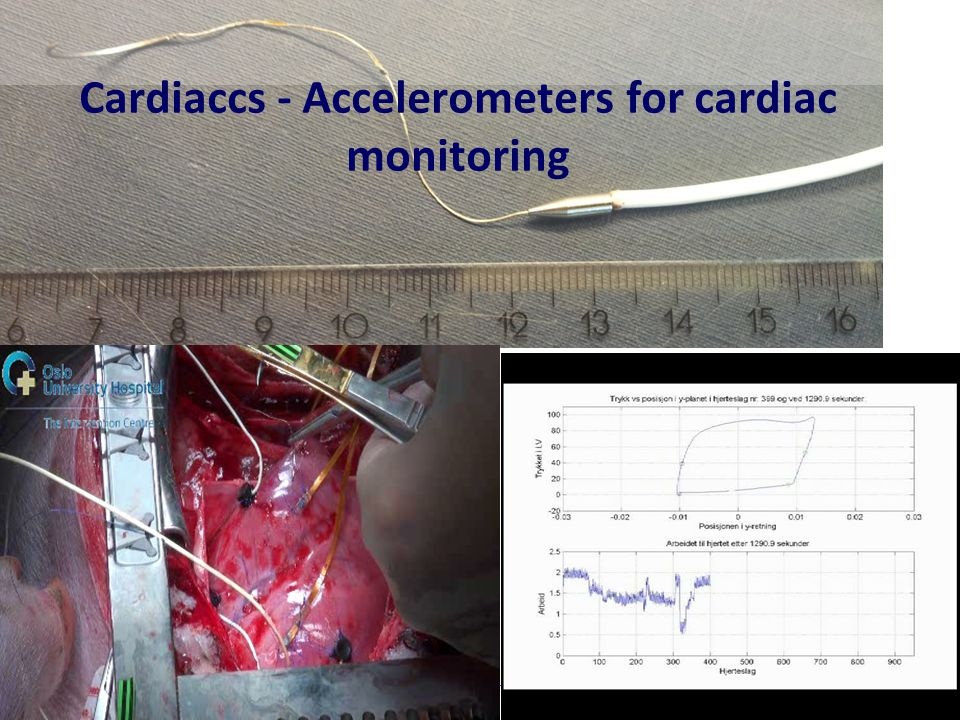 Cardiaccs - Accelerometers for cardiac monitoring