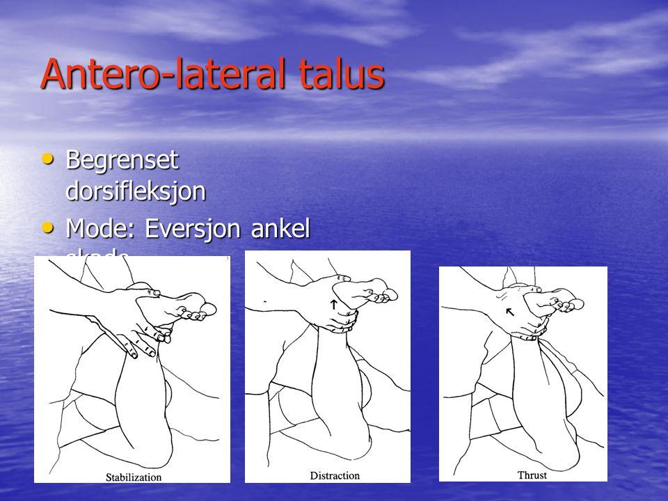 Antero-lateral talus Begrenset dorsifleksjon