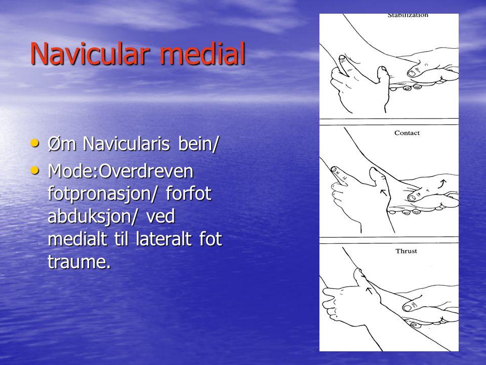 Navicular medial Øm Navicularis bein/