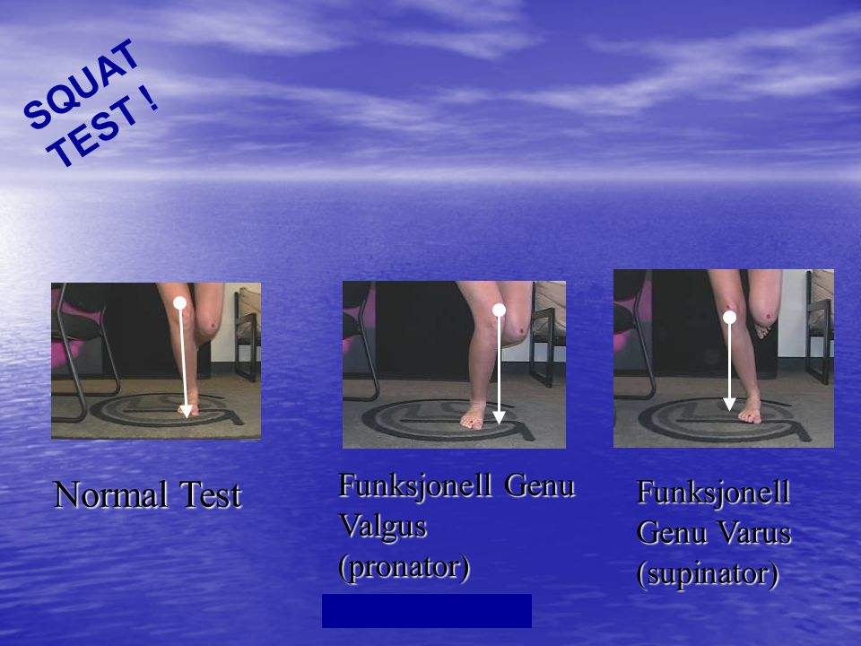 SQUAT TEST ! Normal Test Funksjonell Genu Valgus (pronator)