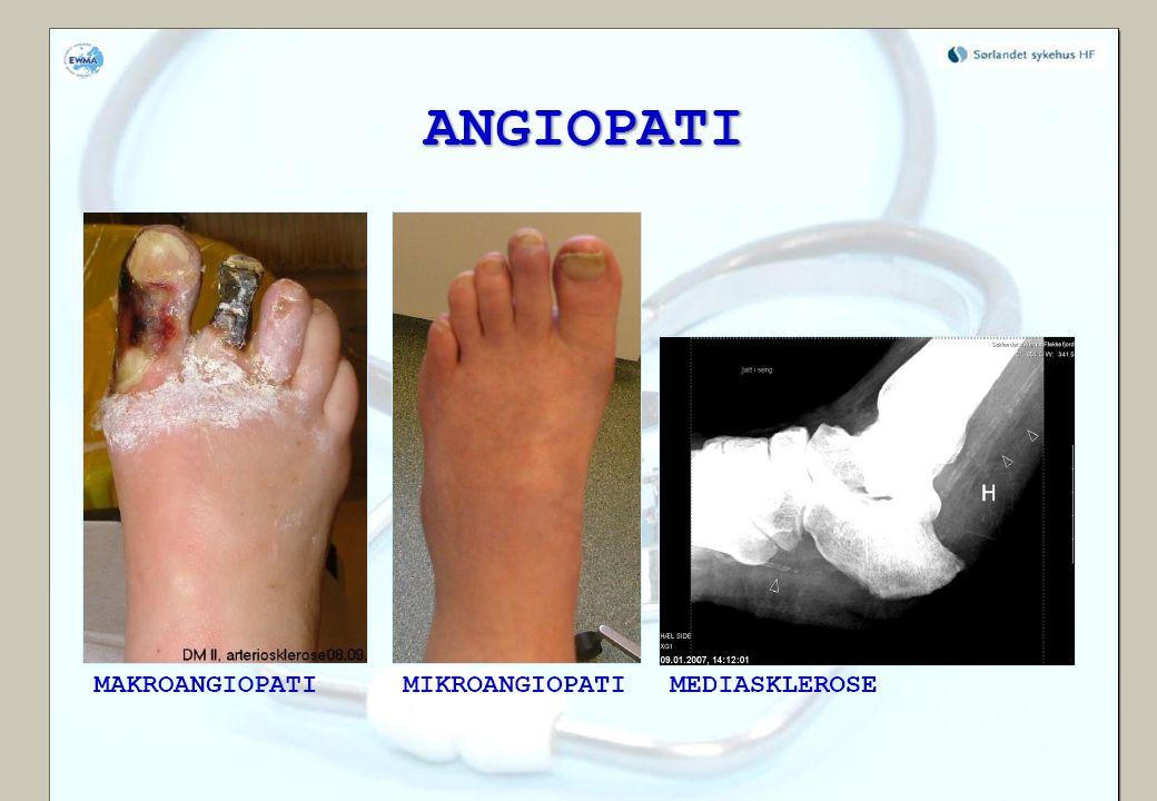 04.04.2017 Microangiopati kan ikke anses som en utløsende årsak når det gjelder diabetiske fotsår.