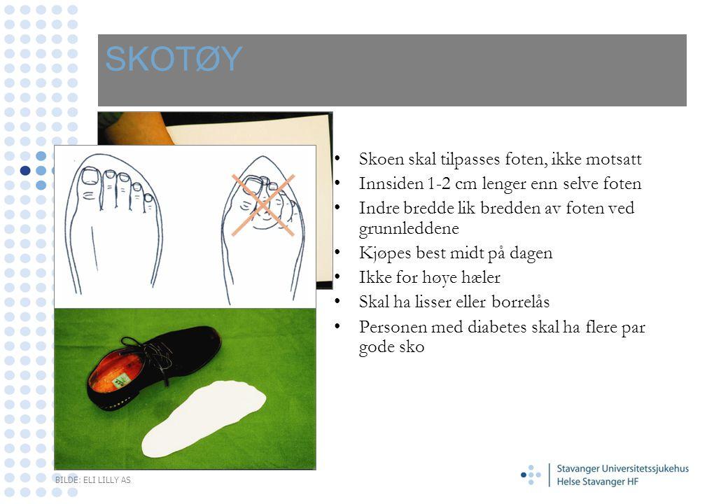 SKOTØY Skoen skal tilpasses foten, ikke motsatt