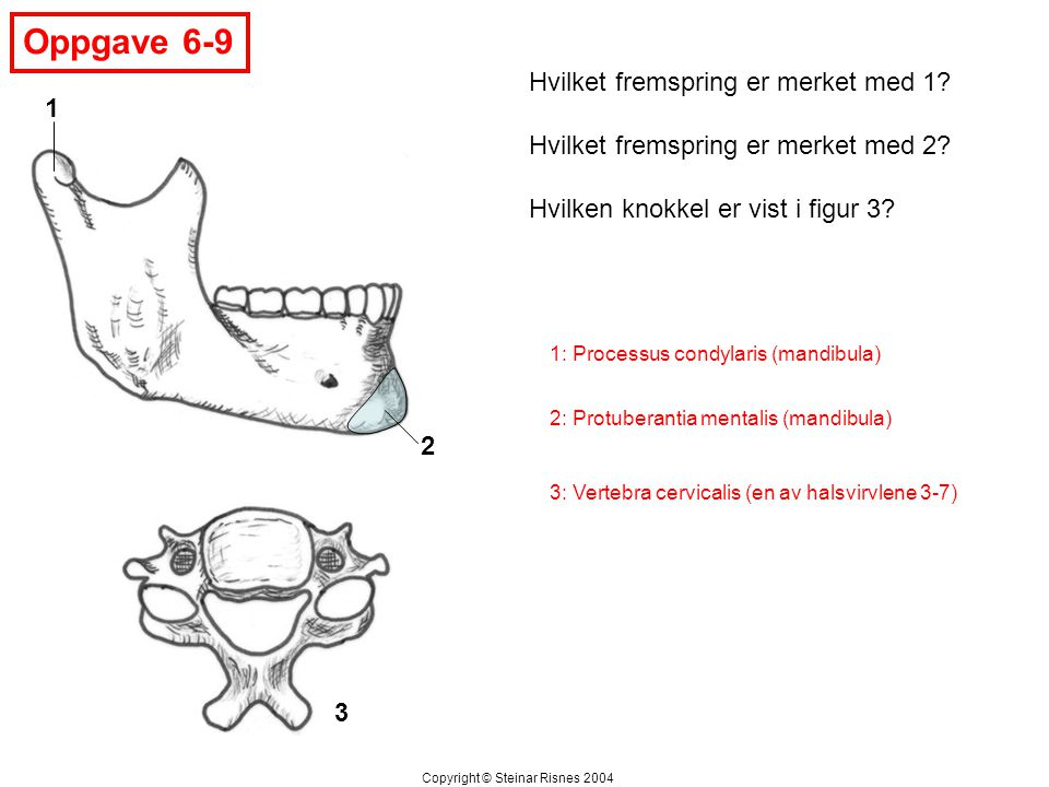 Oppgave 6-9 Hvilket fremspring er merket med 1 1