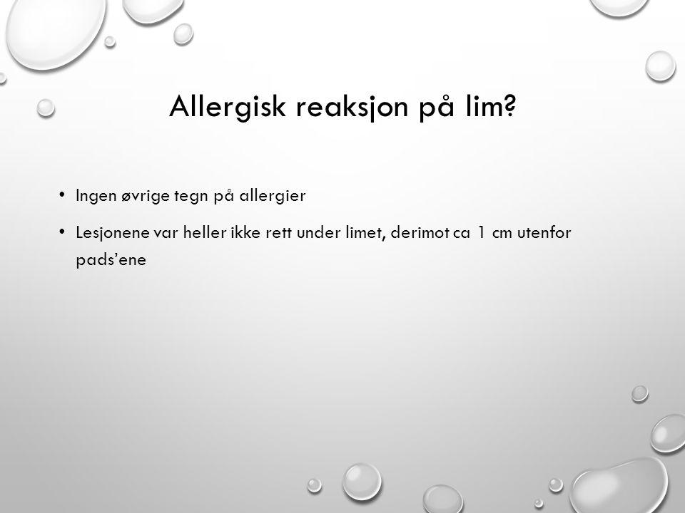 Allergisk reaksjon på lim