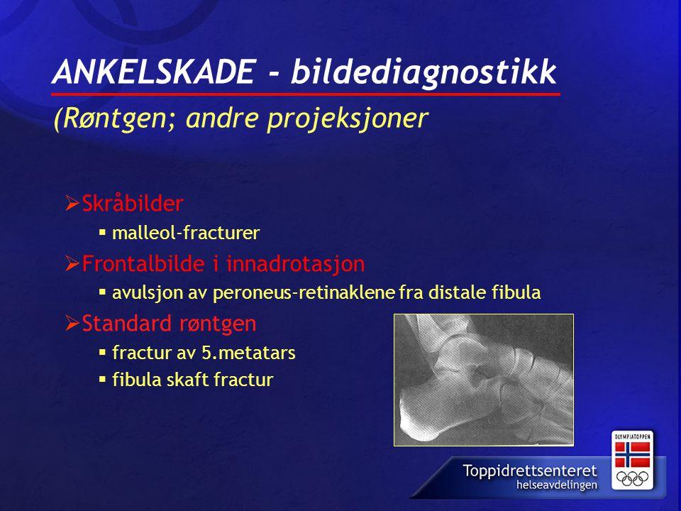 ANKELSKADE - bildediagnostikk (Røntgen; andre projeksjoner