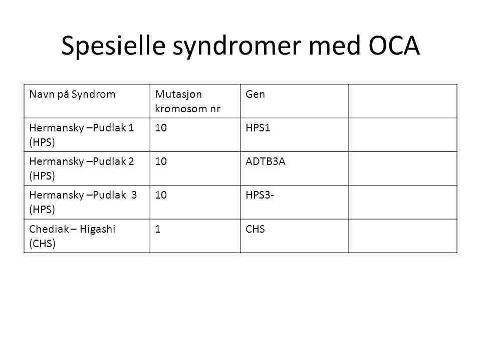 Spesielle syndromer med OCA