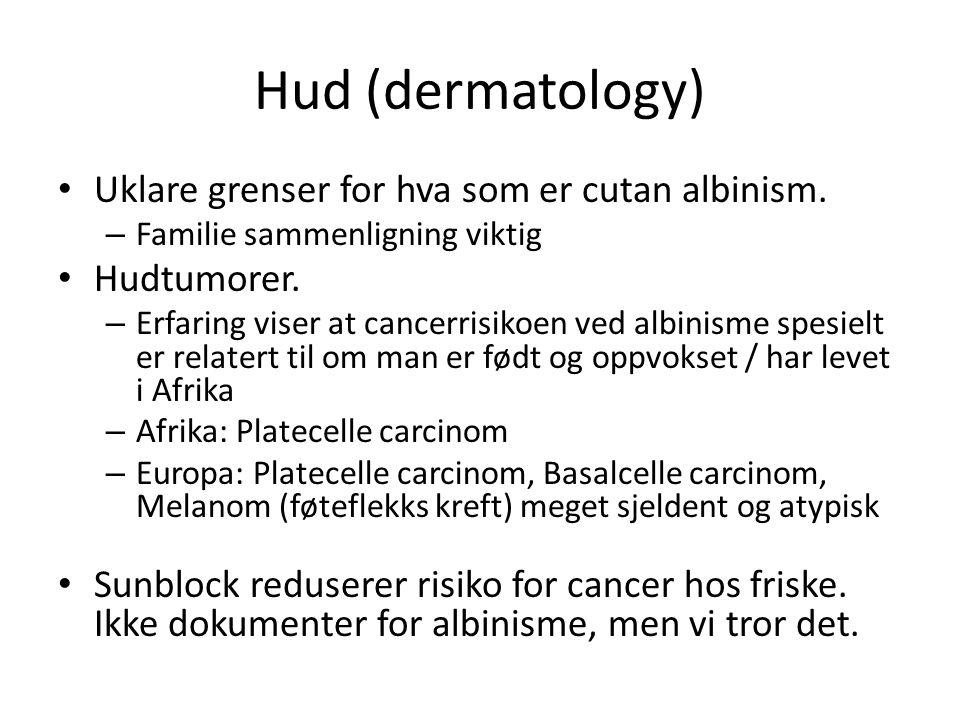 Hud (dermatology) Uklare grenser for hva som er cutan albinism.