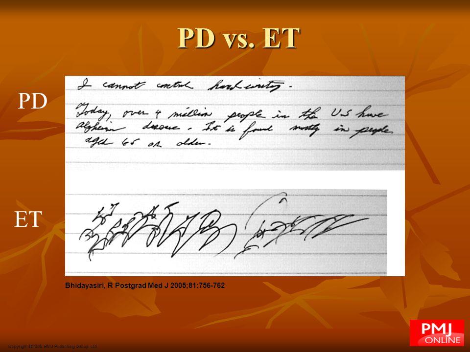 PD vs. ET PD ET Bhidayasiri, R Postgrad Med J 2005;81:756-762