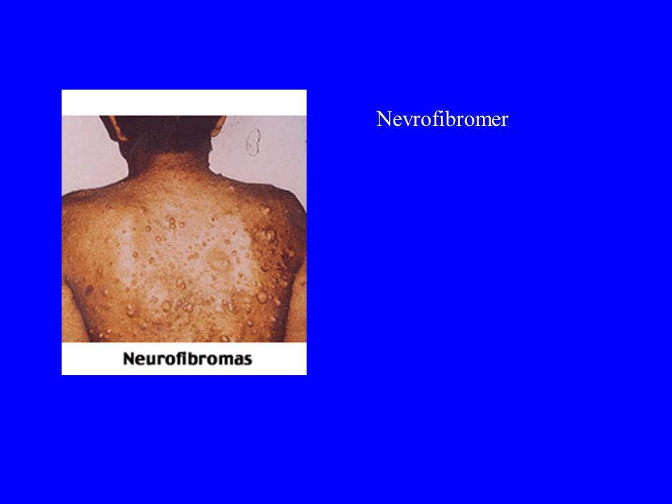 Nevrofibromer Kan være noen få eller veldig mange