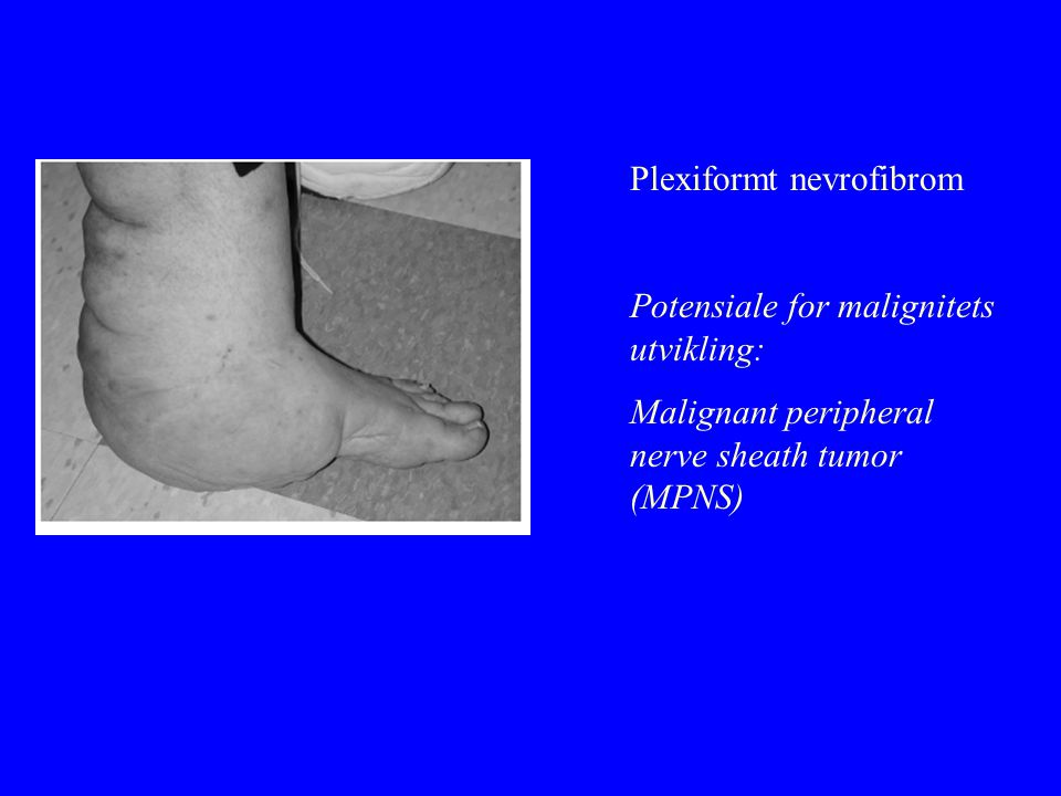 Plexiformt nevrofibrom