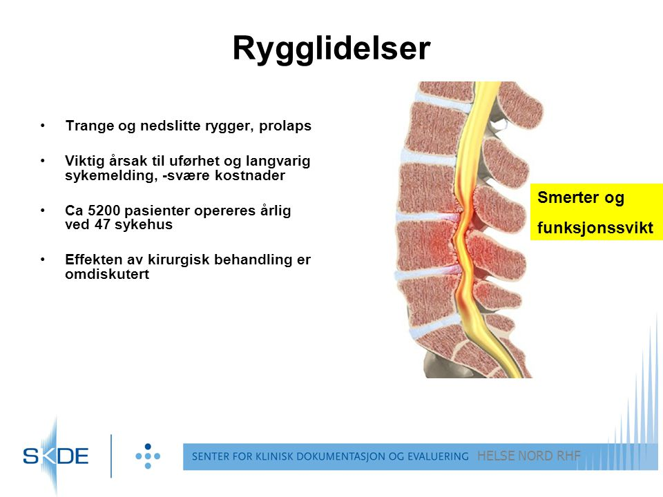 Rygglidelser Smerter og funksjonssvikt