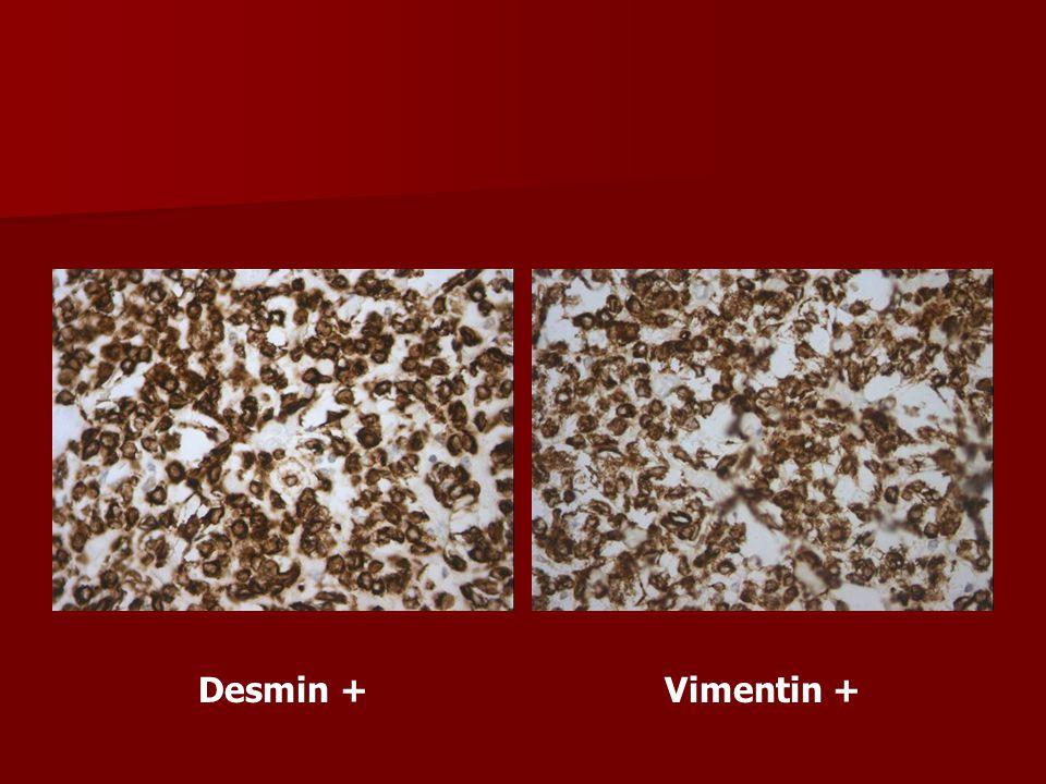 Desmin + Vimentin +