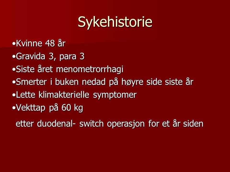Sykehistorie •Kvinne 48 år •Gravida 3, para 3
