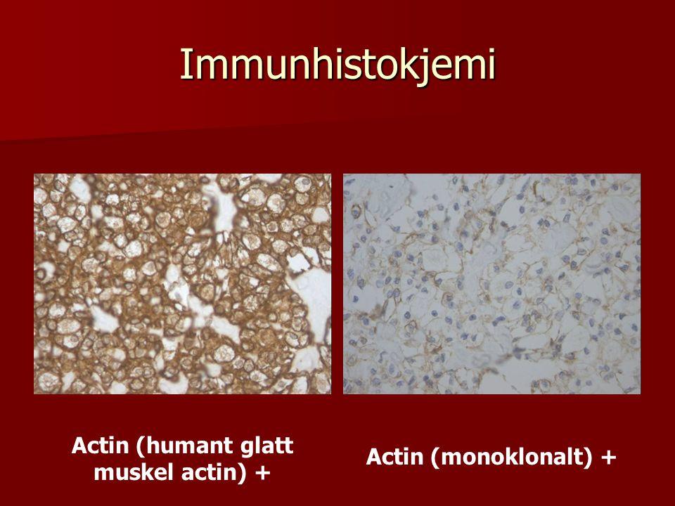 Actin (humant glatt muskel actin) +