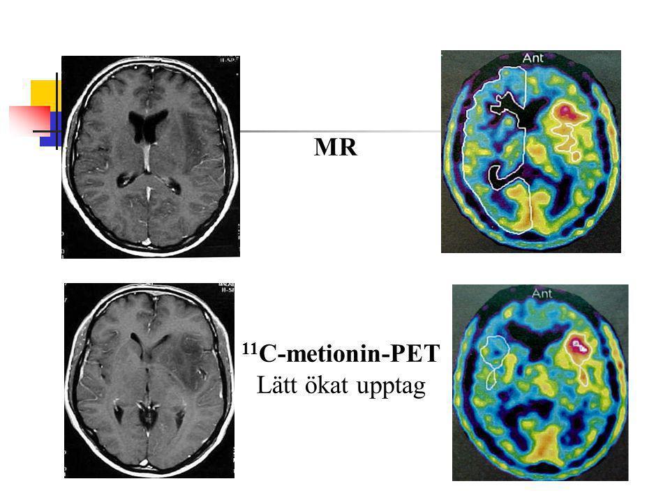 MR 11C-metionin-PET Lätt ökat upptag