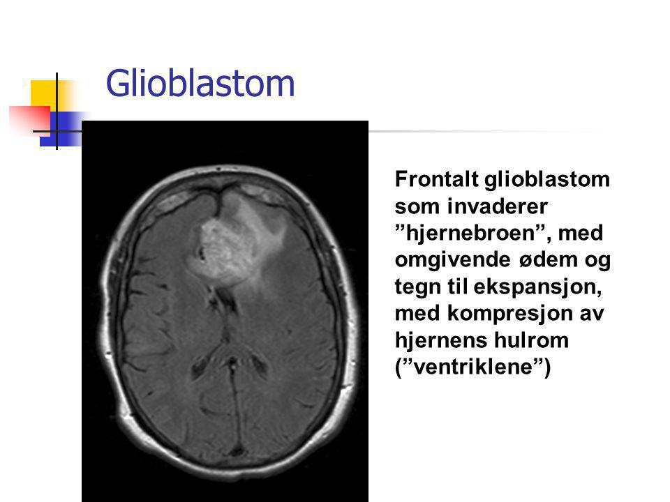 Glioblastom Frontalt glioblastom