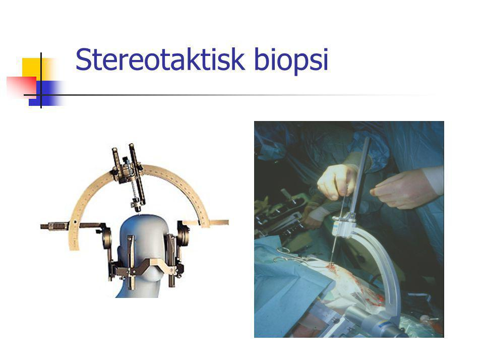 Stereotaktisk biopsi