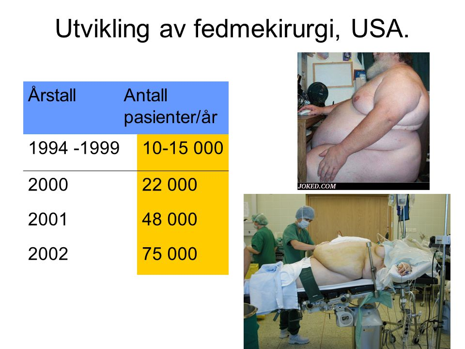 Utvikling av fedmekirurgi, USA.
