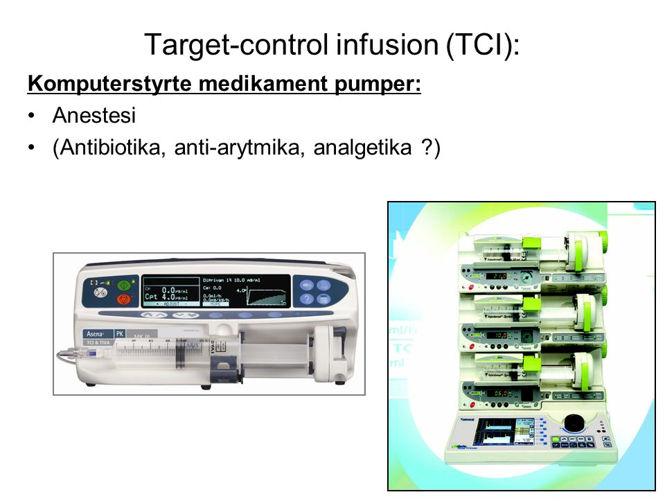 Target-control infusion (TCI):