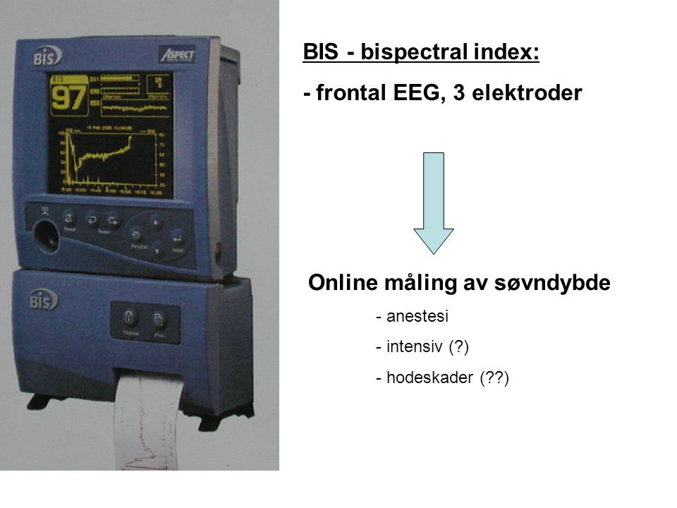BIS - bispectral index: - frontal EEG, 3 elektroder