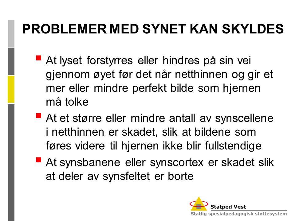 PROBLEMER MED SYNET KAN SKYLDES
