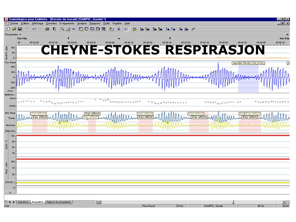 CHEYNE-STOKES RESPIRASJON