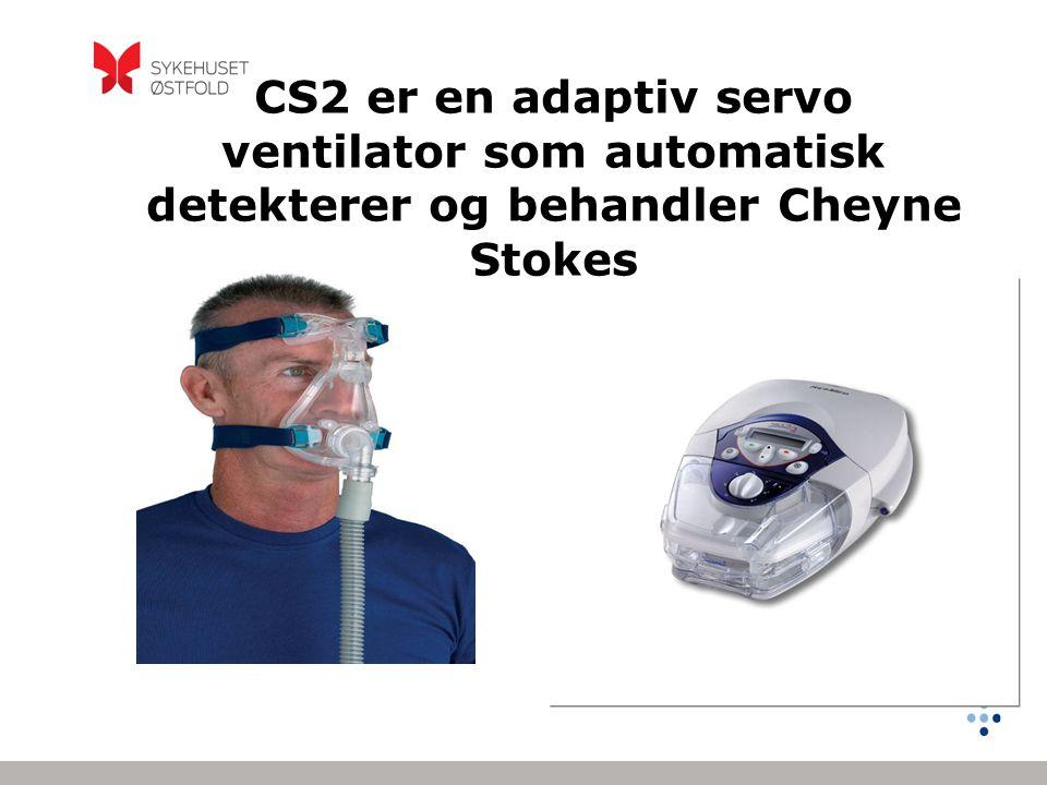 CS2 er en adaptiv servo ventilator som automatisk detekterer og behandler Cheyne Stokes
