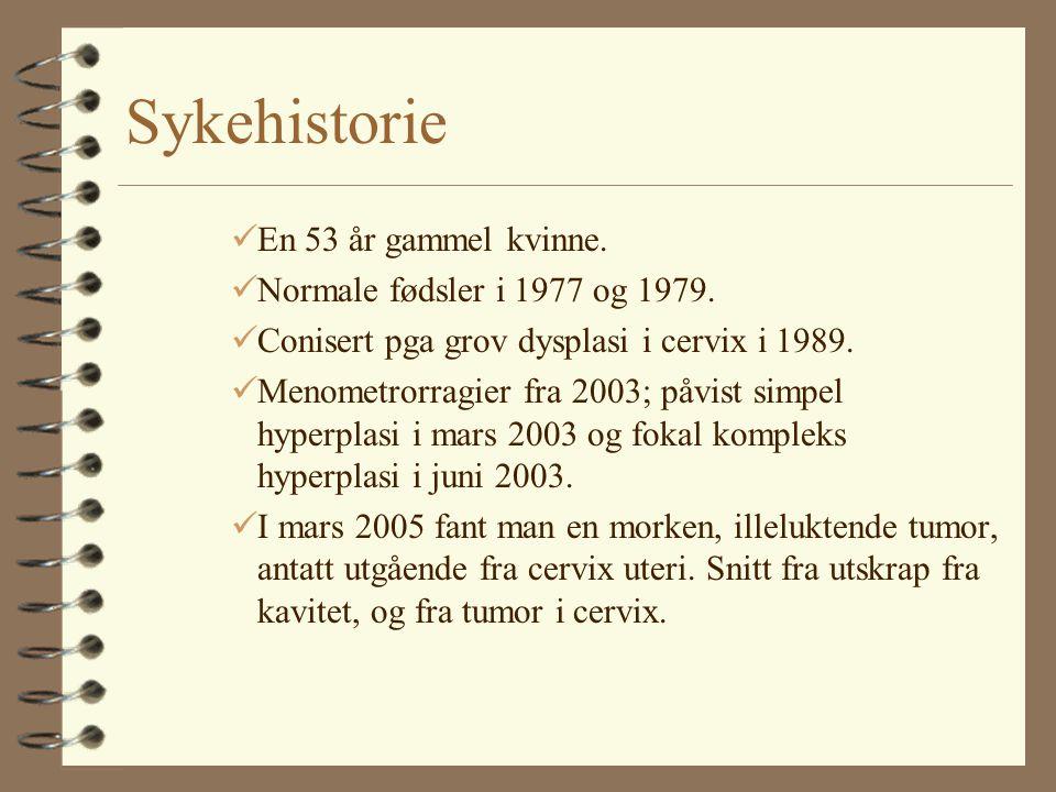 Sykehistorie En 53 år gammel kvinne. Normale fødsler i 1977 og 1979.