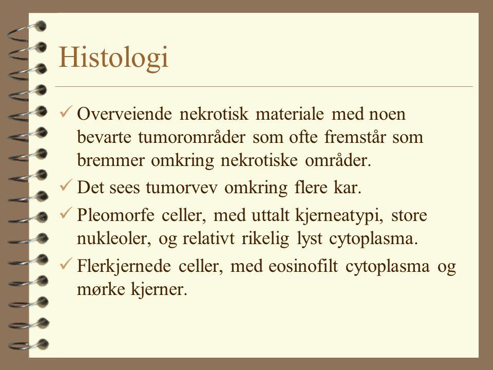Histologi Overveiende nekrotisk materiale med noen bevarte tumorområder som ofte fremstår som bremmer omkring nekrotiske områder.