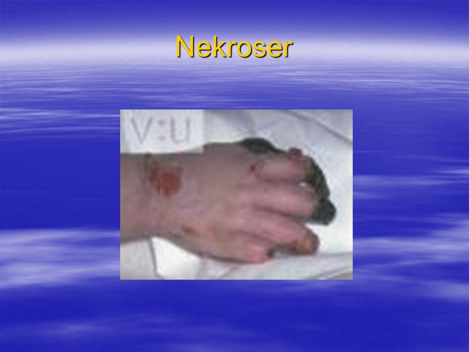 Nekroser
