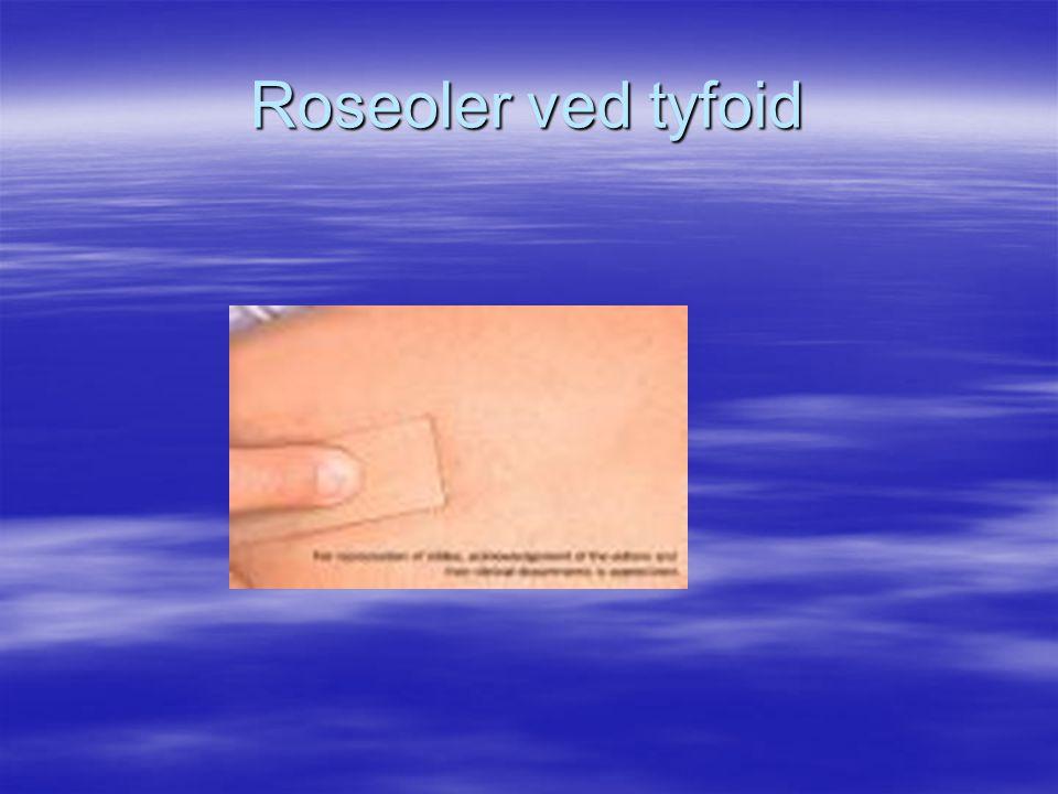Roseoler ved tyfoid