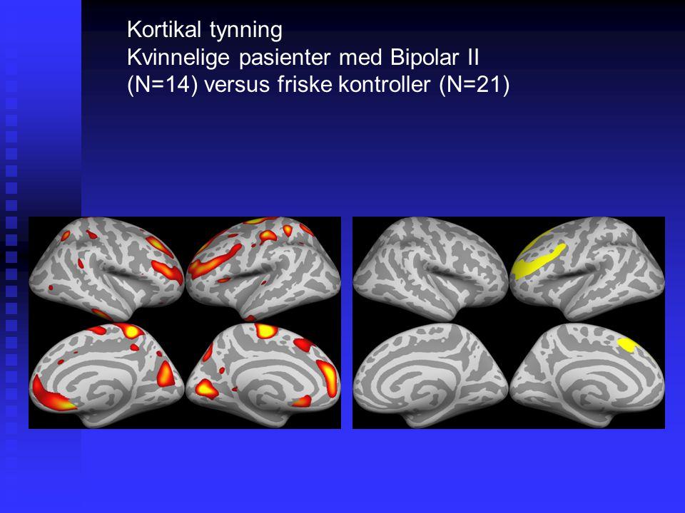 Kortikal tynning Kvinnelige pasienter med Bipolar II (N=14) versus friske kontroller (N=21) Dorsolaterale PFC left.