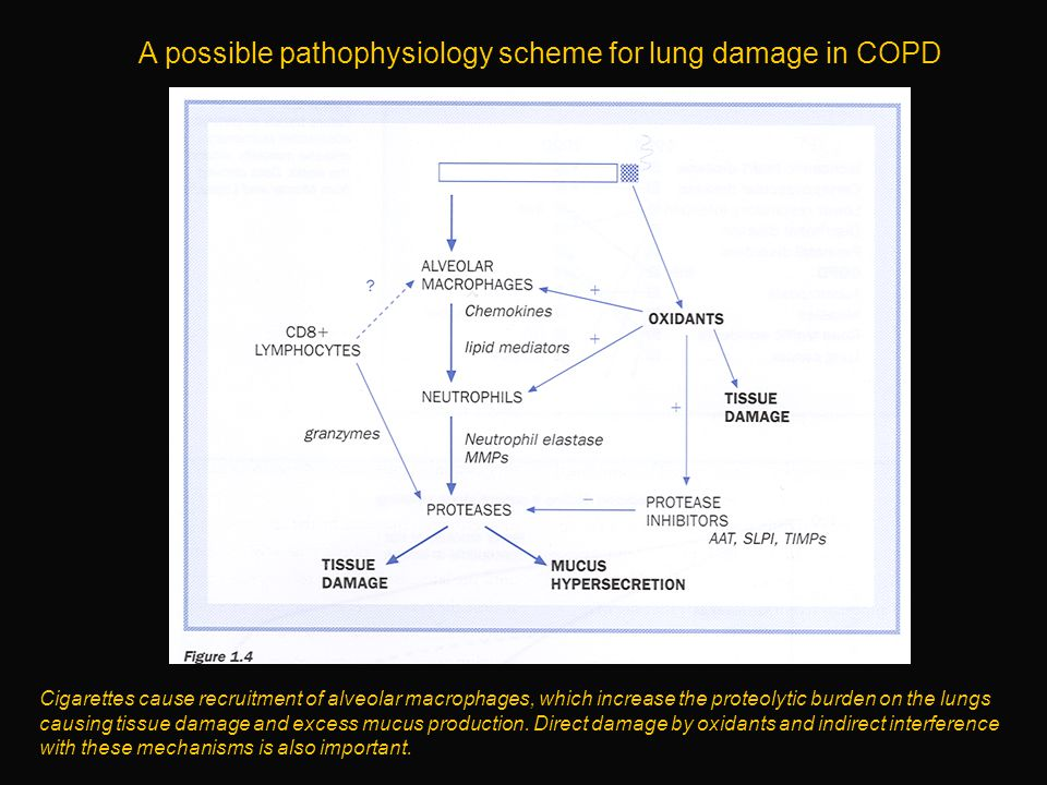 A possible pathophysiology scheme for lung damage in COPD