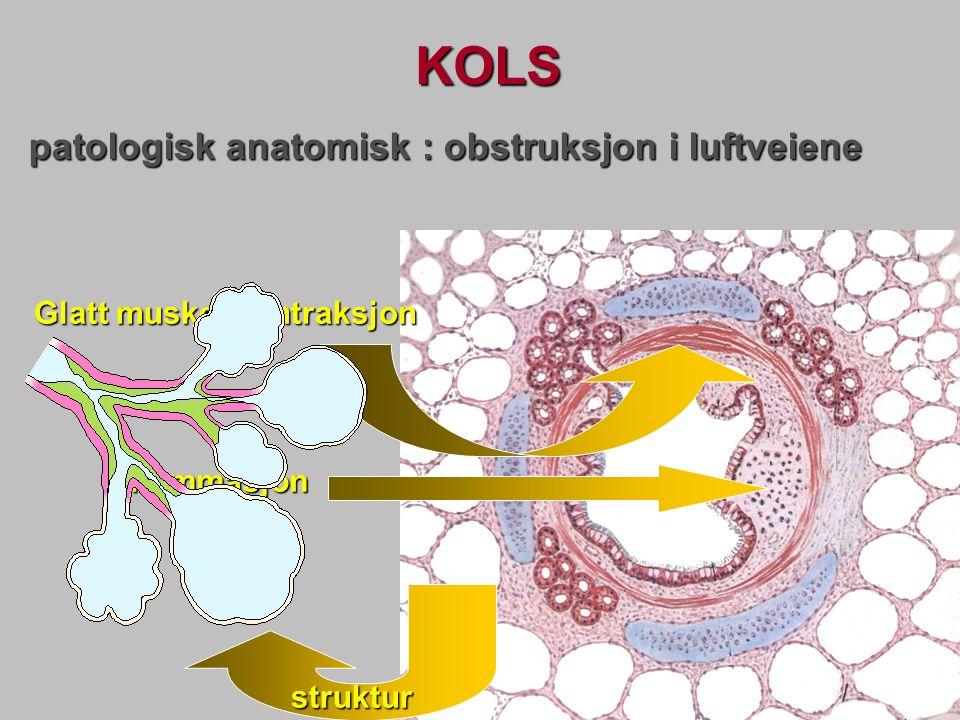 KOLS patologisk anatomisk : obstruksjon i luftveiene