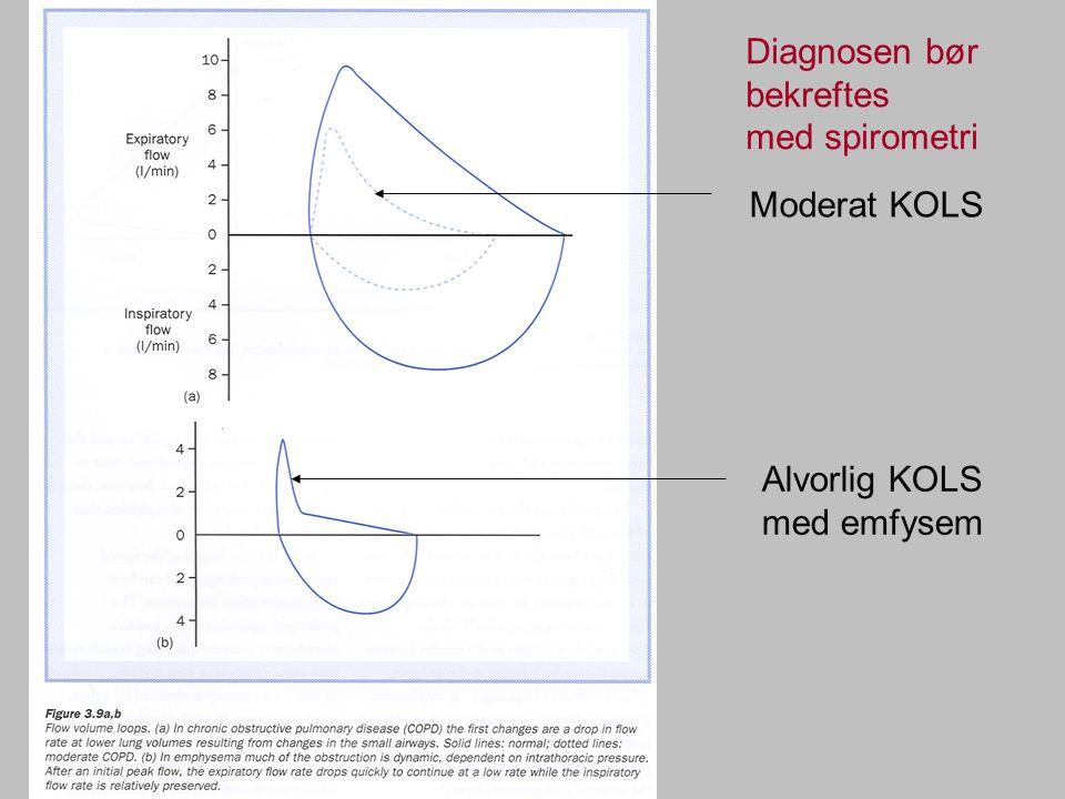 Diagnosen bør bekreftes
