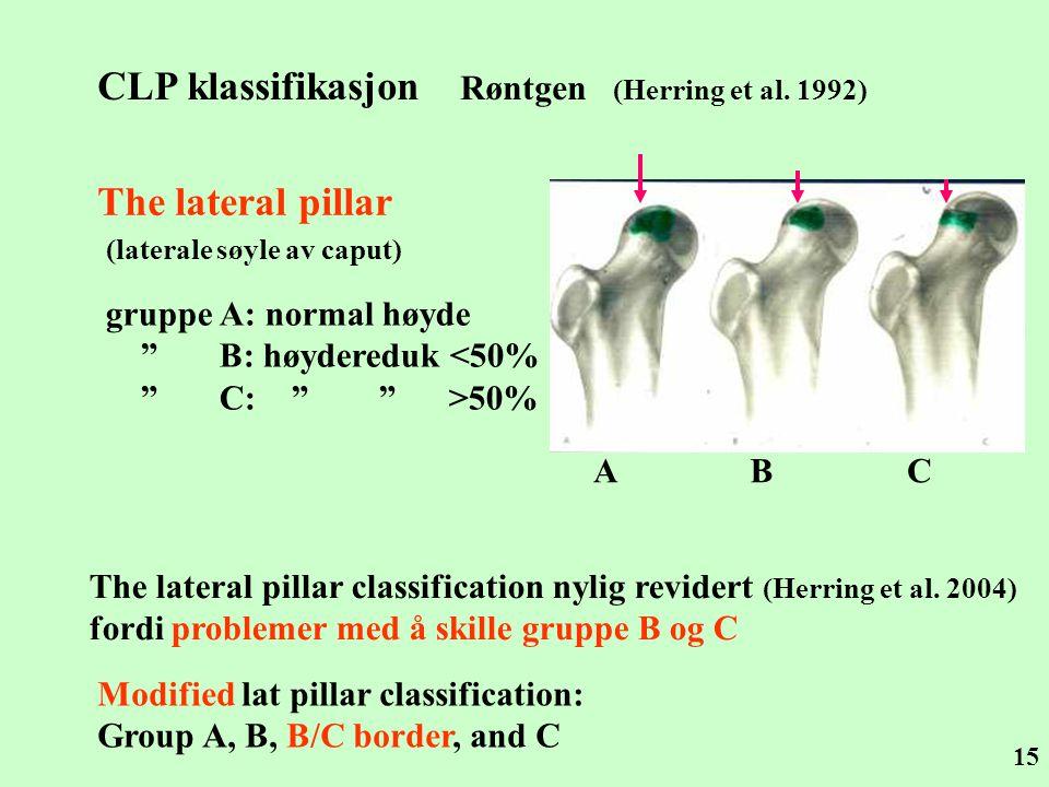 CLP klassifikasjon Røntgen (Herring et al. 1992)